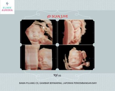 tvs dating scan The earlier in pregnancy a scan is performed, the more accurate the age   overall, the accuracy of sonographic dating in the first trimester is ~5 days (95%.